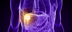 Ray of hope: Radiotherapy improves survival of patients with liver cancer invading the portal vein